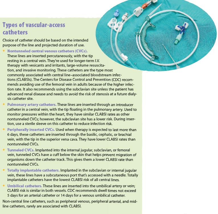 Types of vascular-access catheters
